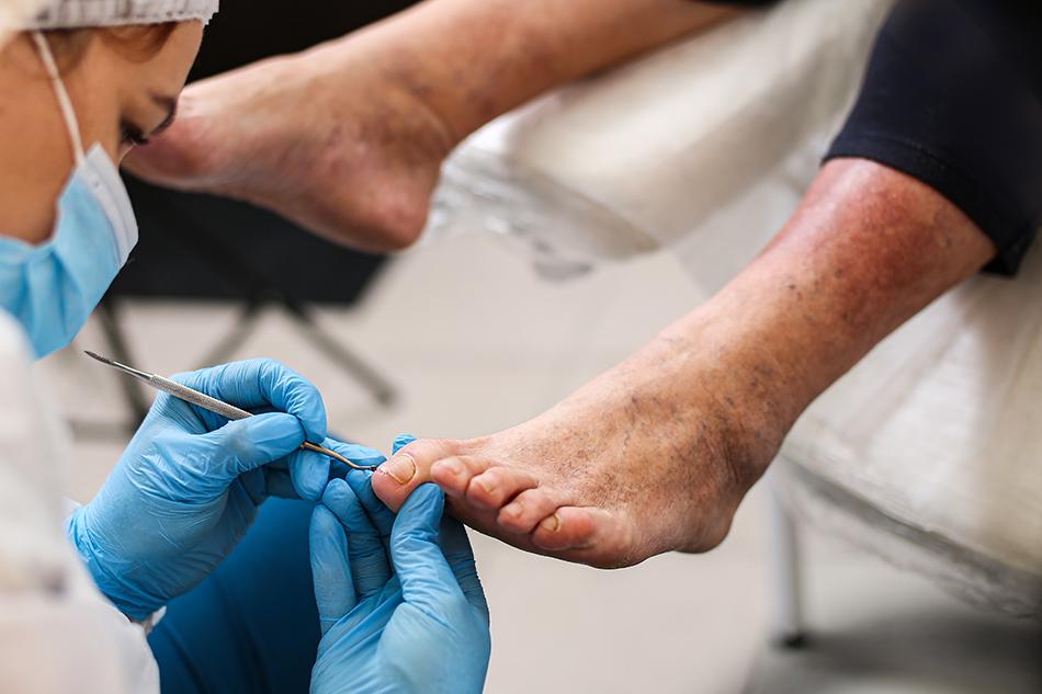 Technician giving an elderly patient a pedicure.